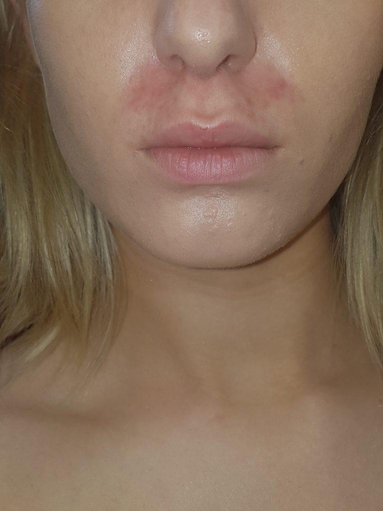 Eczema & Dermatitis? Help is Here